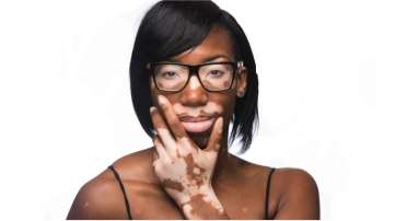 Tips for Vitiligo Patients